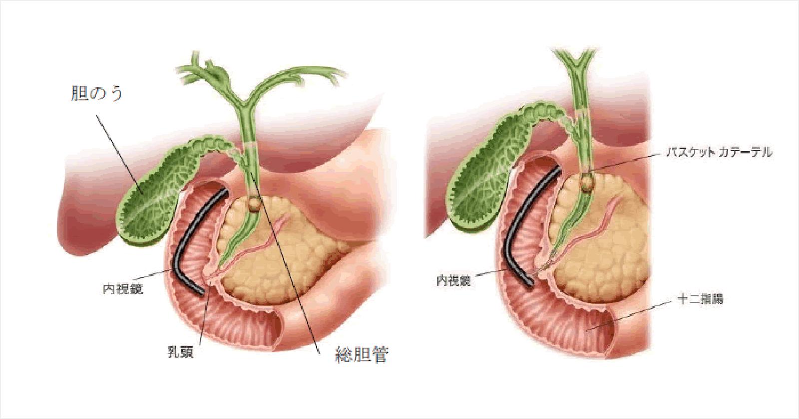 内視鏡的乳頭切開術(EST)・内視鏡的乳頭拡張術(EPBD)・内視鏡的結石除去術